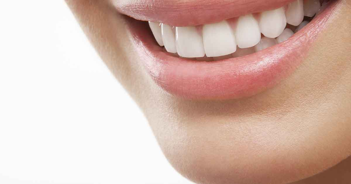 Blanqueadores dentales