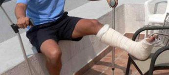 Se producen más fracturas en verano