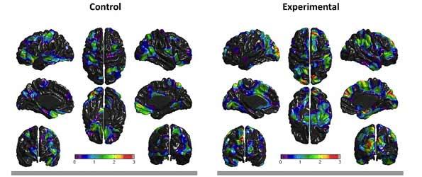 Estudio del cerebro