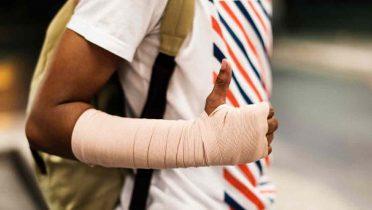 Consulta legal: Me he caído en la calle y me he roto un brazo, ¿puedo reclamar una indemnización?
