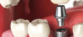 Dónde van los implantes dentales, prótesis, placas de acero o tornillos metálicos de un difunto tras su incineración