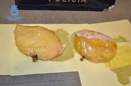 Implantes mamarios con cocaína en su interior.