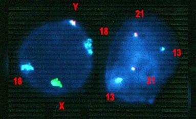 Cromosomas en la enfermedad rara SIA.