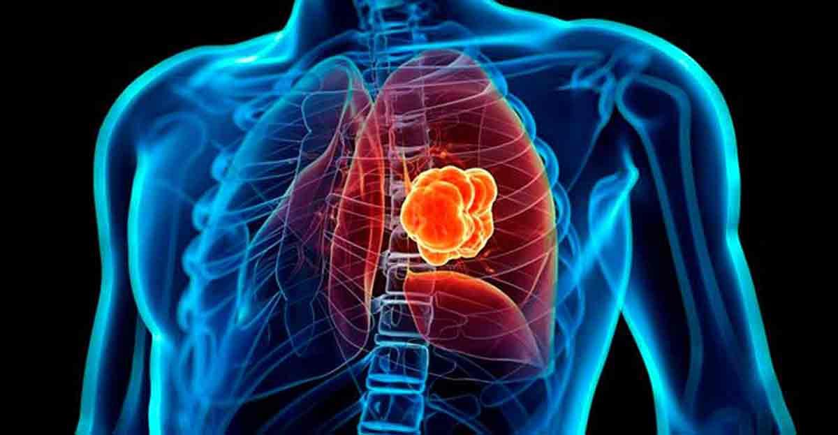 Un test genético diagnostica si puedes heredar un cáncer