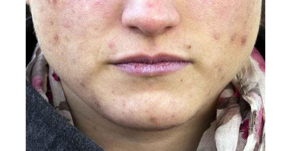 Cómo eliminar un grano de la cara en horas
