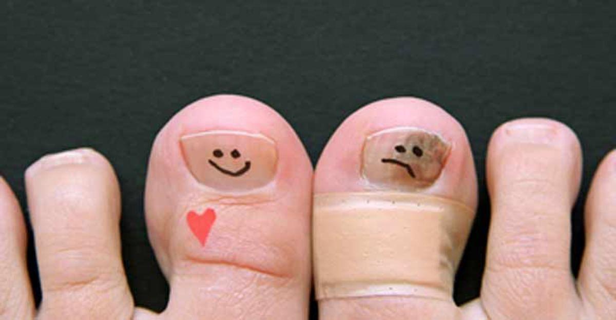 Remedios caseros para los hongos en las uñas de los pies.