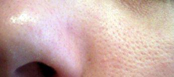 12 trucos para eliminar poros abiertos e imperfecciones.