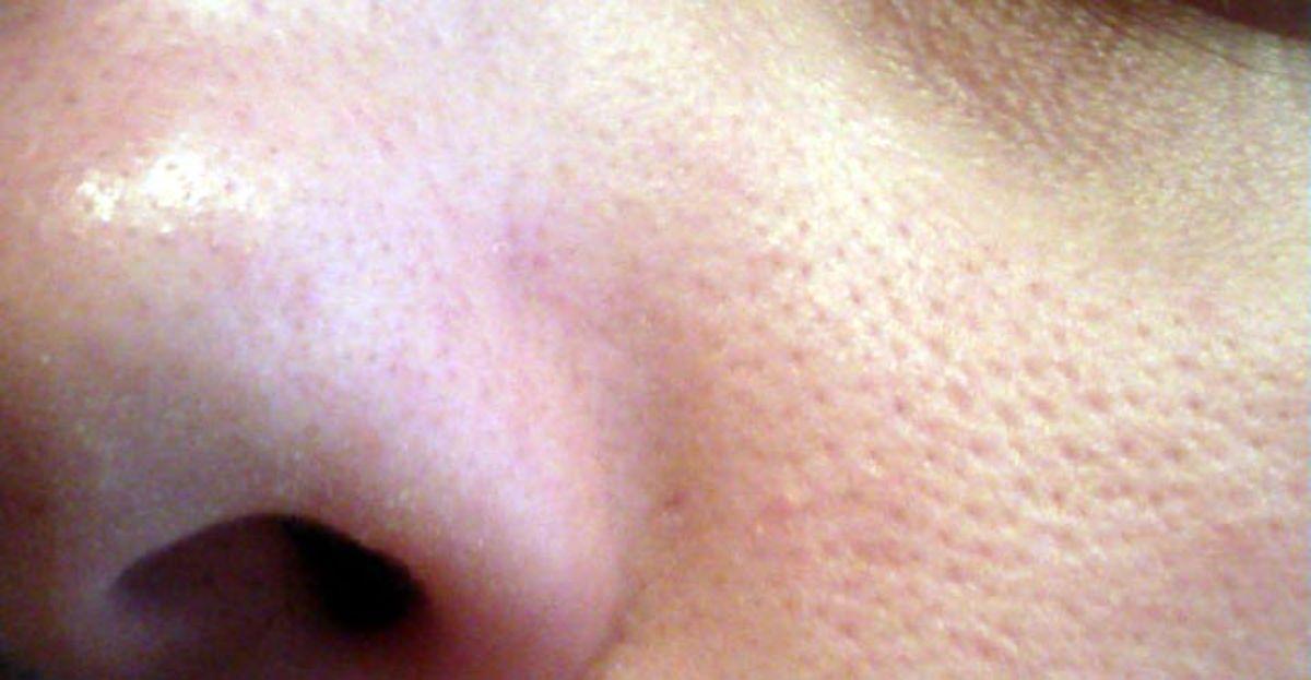 como quitar los granitos de la cara de un dia para otro