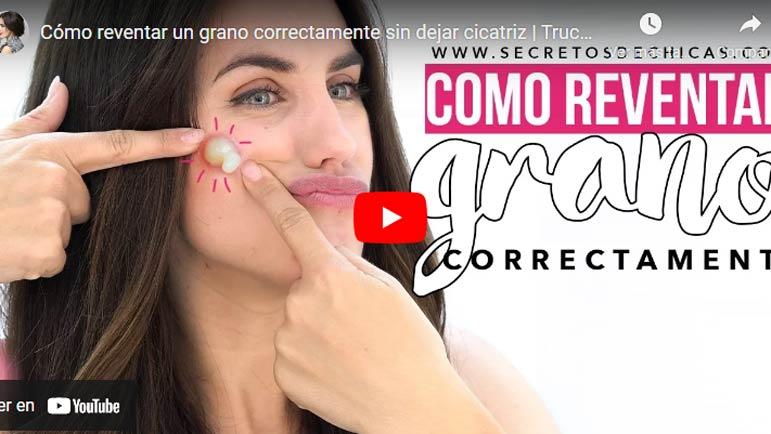 Video explicativo para eliminar un grano de la cara en horas