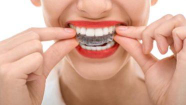 Ortodoncia o alineadores dentales, ¿qué es mejor?
