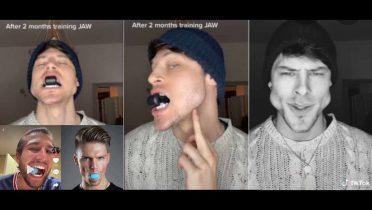 Los peligros de los ejercitadores para marcar mandíbula