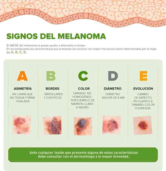 Signos del melanoma