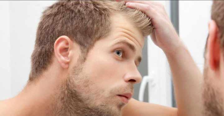 Hombre mirándose las entradas de la cabeza